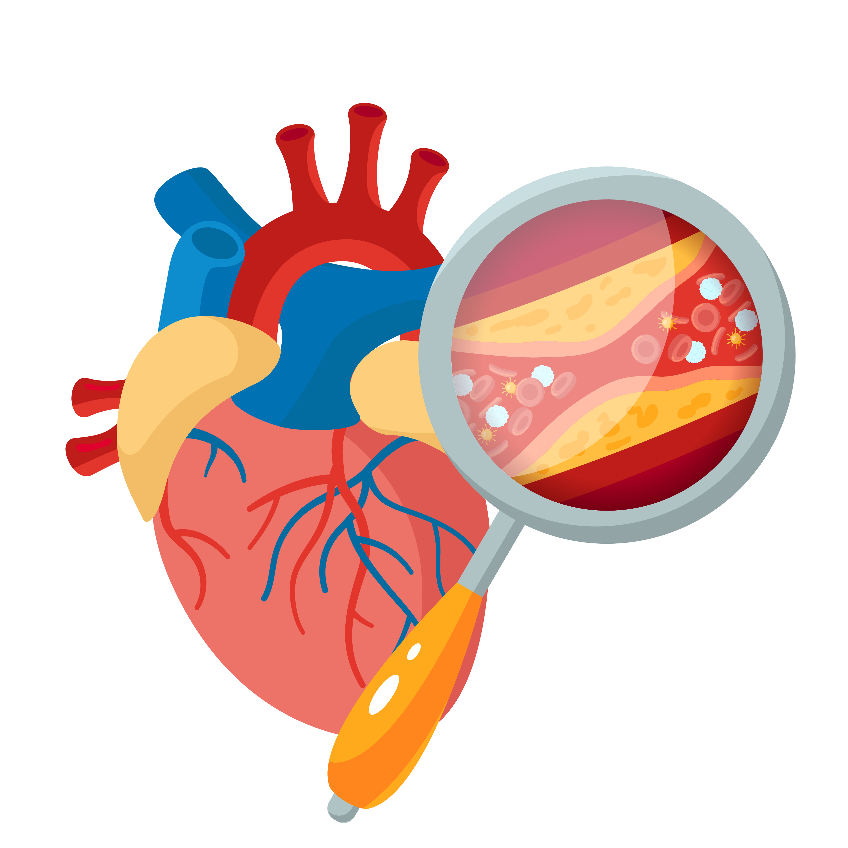 Blockage in arteries due to high cholesterol